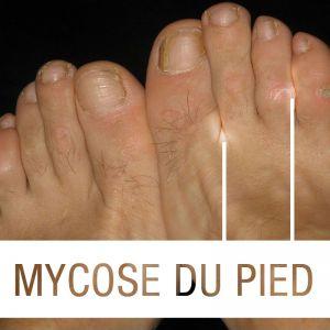 mycose-du-pied
