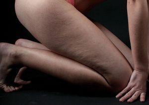 cellulite femme comment traiter