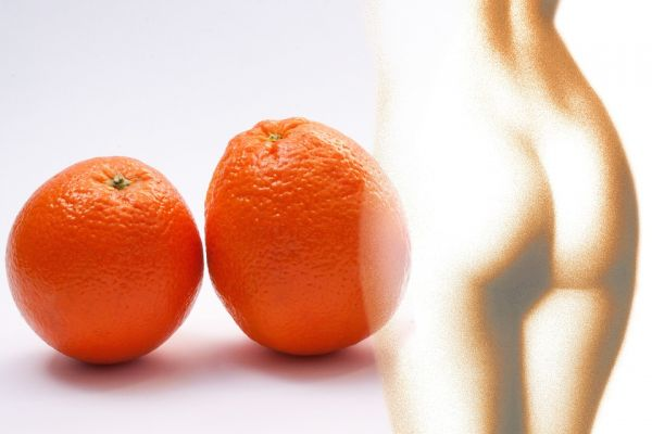 cellulite peau d'orange graisses