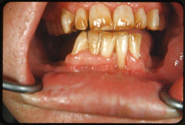 Comment prévenir les caries dentaires chez les enfants?