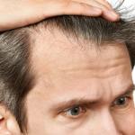 Quels aliments privilégier pour venir à bout de la perte des cheveux?